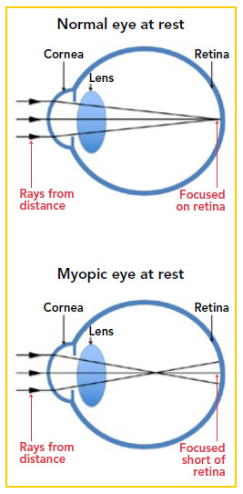 Normal eye at rest compared to myopic eye at rest - Singapore National Eye Centre
