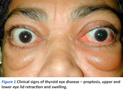 Thyroid Eye Disease A Brief Overview National Dental Centre