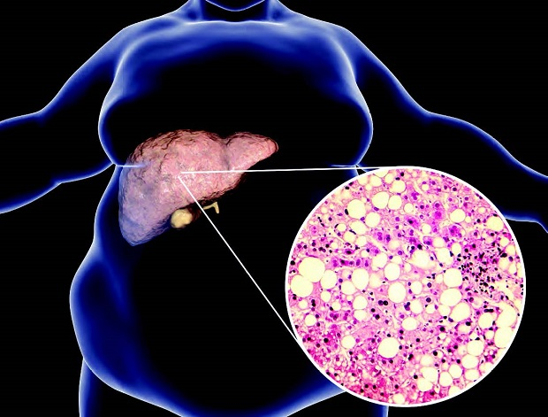 Zooming in on liver fat