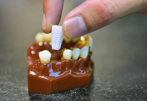Jaw-dropping: The 3D-printed dental plugs that could save implant patients money, time and pain