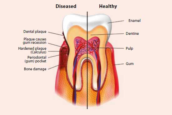 Diseased versus healthy gums - National Dental Centre Singapore
