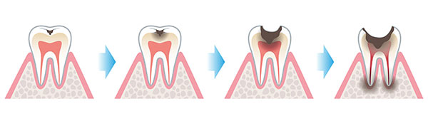 Cavity Formation in Early Childhood Caries