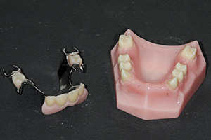 Image of a partial denture