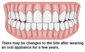 Wearing oral appliance - SingHealth Duke-NUS Sleep Centre