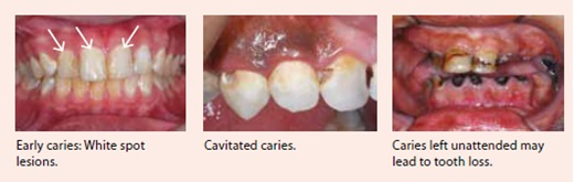 tooth-decay-national-dental-cenre-singapore